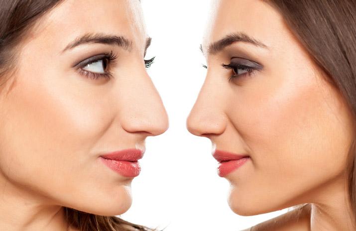 rhinoplasty-nosejob